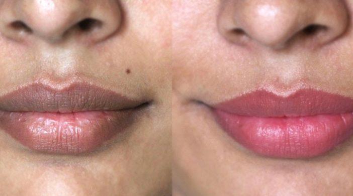 lip hyperpigmentation